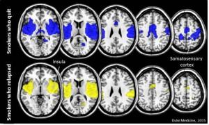 Мозг курильщиков, бросивших курить, запрограммирован на успех