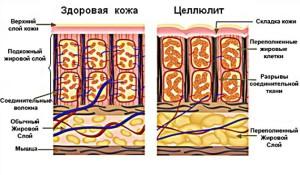 жировые отложения