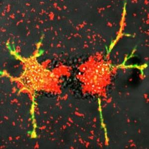 Умные клетки головного мозга